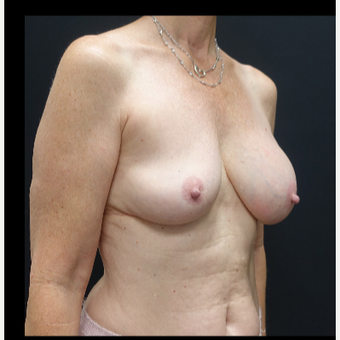 35-44 year old woman treated with Breast Implants before 3731586