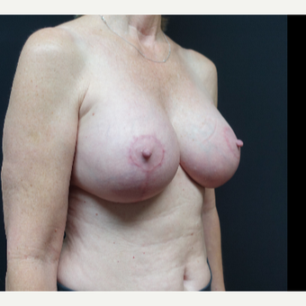 35-44 year old woman treated with Breast Implants after 3731586