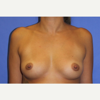 25-34 year old woman treated with Breast Augmentation before 3201106