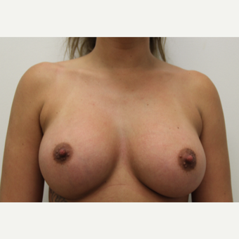 25-34 year old woman treated with Breast Augmentation after 3201106