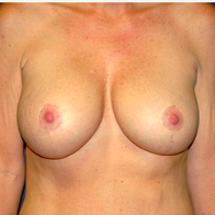 46 year old woman treated with Breast Lift with Implants after 3666110