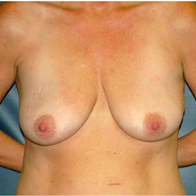 46 year old woman treated with Breast Lift with Implants before 3666110
