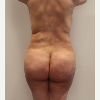 35-44 year old woman treated with Brazilian Butt Lift after 3338926