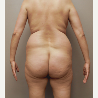 35-44 year old woman treated with Brazilian Butt Lift before 3338926