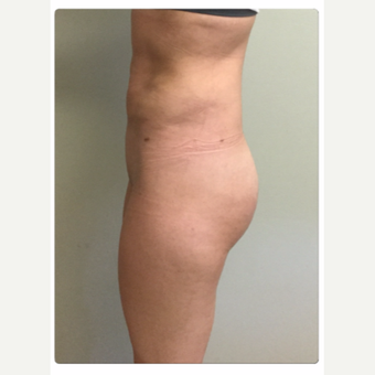 25-34 year old woman treated with Smart Lipo after 3098186