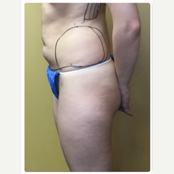 25-34 year old woman treated with Smart Lipo before 3098186