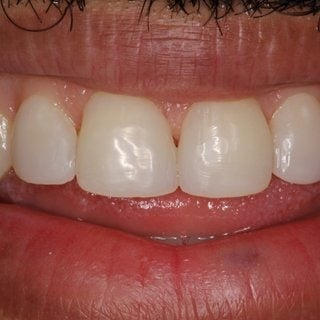 35-44 year old man treated with Dental Bonding