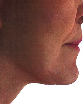 Platysmaplasty with facelift and liposculpting