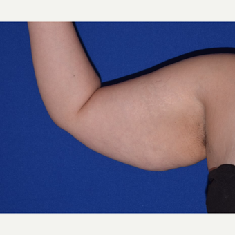 25-34 year old woman treated with Arm Lift before 3827225