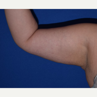 25-34 year old woman treated with Arm Lift after 3827225