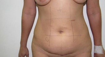 25-34 year old woman treated with Liposculpture before 2815069