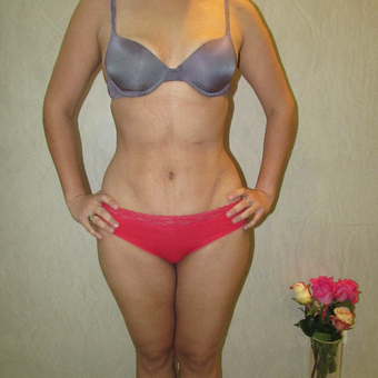 25-34 year old woman treated with Liposculpture after 2815069