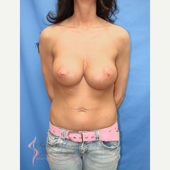 35-44 year old woman treated with Breast Implants after 3095504