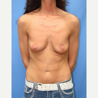 35-44 year old woman treated with Breast Implants before 3095504