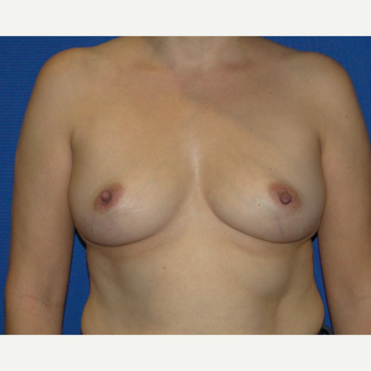 400 CC Silicone Breast Implants before 3537372