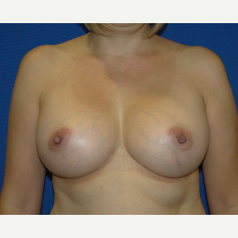 400 CC Silicone Breast Implants after 3537372