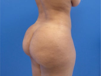 33 y.o. female – Lipo of abdomen, flanks, and back with fat transfer to buttocks  – 1450cc per side after 3005947