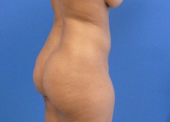 33 y.o. female – Lipo of abdomen, flanks, and back with fat transfer to buttocks  – 1450cc per side before 3005947