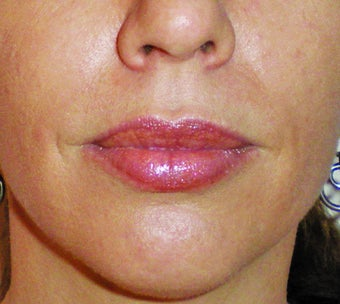 Filler for Lip Augmentation after 123683