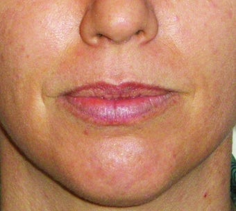 Filler for Lip Augmentation before 123683