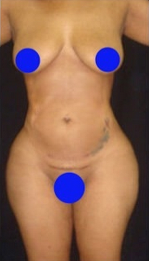 25-34 year old woman treated with Liposculpture after 1765879