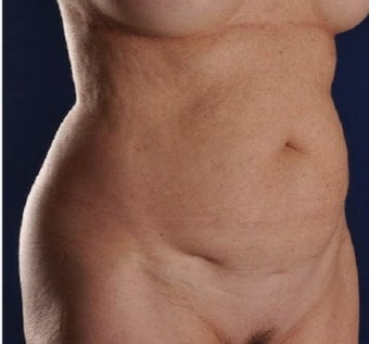 59 yo female treated with Smart Lipo of the Abdomen, Flanks and Mons areas (View 4 of 4) before 2150371