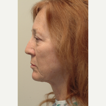 65-74 year old woman treated with Neck Lift before 3763967