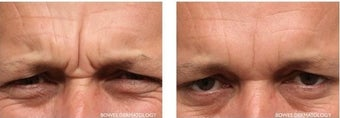 Frown Area treated with Botox and Fillers before 1030583