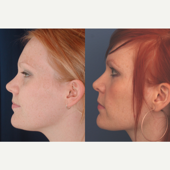 18-24 year old woman treated with Rhinoplasty before 3699030