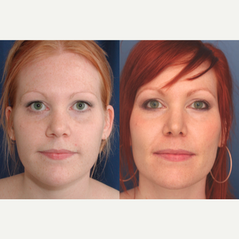 18-24 year old woman treated with Rhinoplasty after 3699030