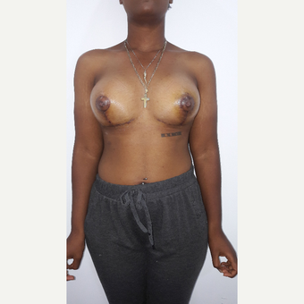 18-24 year old woman treated with Breast Lift with Implants after 3009381