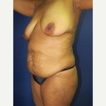 55-64 year old woman treated with Mommy Makeover before 3136053