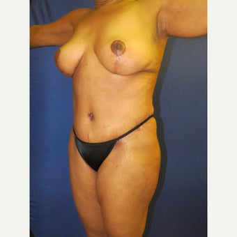 55-64 year old woman treated with Mommy Makeover after 3136053