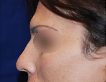 Endoscopic Brow Reduction  before 1378858