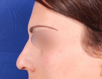 Endoscopic Brow Reduction  after 1378858