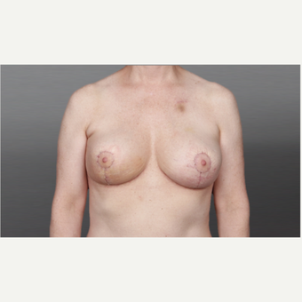 35-44 year old woman treated with Breast Lift after 3027852