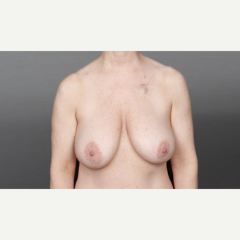 35-44 year old woman treated with Breast Lift before 3027852