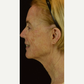45-54 year old woman treated with Halo Laser after 3202874