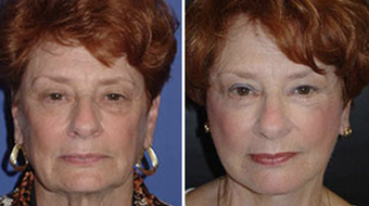 Facelift before 1149338