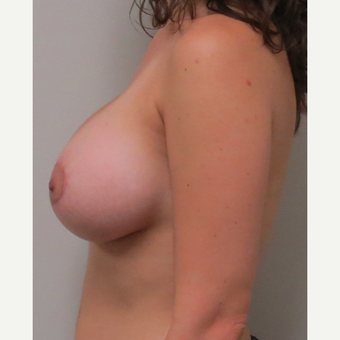 Breast Lift with Implants for this 28 Year Old Woman after 3030448