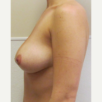Breast Lift with Implants for this 28 Year Old Woman before 3030448