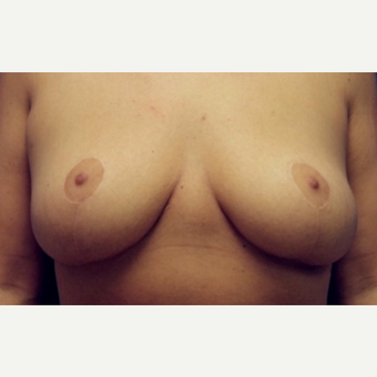 30 year old woman with a Breast Reduction after 3065377