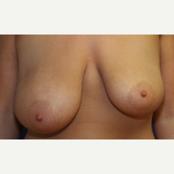 30 year old woman with a Breast Reduction before 3065377