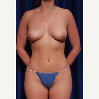 18-24 year old woman treated with Breast Implant Removal after 2758500