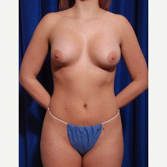 18-24 year old woman treated with Breast Implant Removal before 2758500