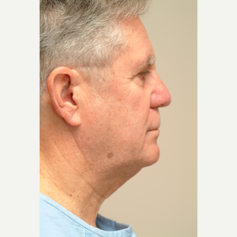 65-74 year old man treated with Neck Lift before 3763381