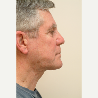 65-74 year old man treated with Neck Lift after 3763381