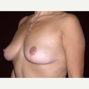 43 year old woman treated with Breast Lift after 2311619