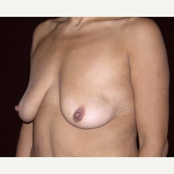 43 year old woman treated with Breast Lift before 2311619