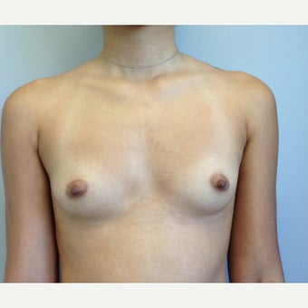 18-24 year old woman treated with Breast Augmentation before 2293033